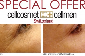 cellcosmet wrinkles eraser facial , experience the wonder of stem cell therapy